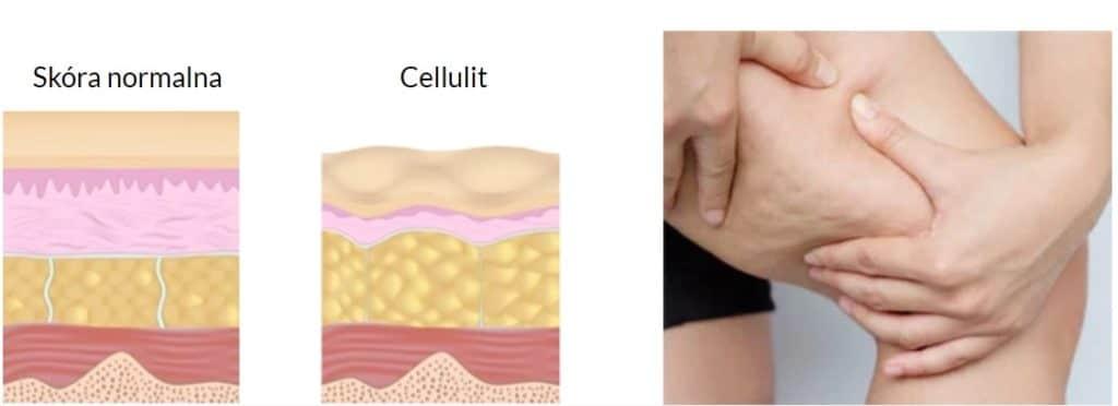 czym jest cellulit